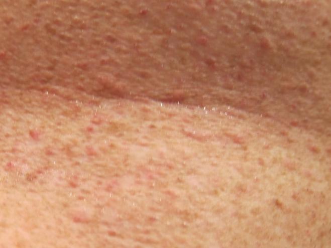 purple red spots on skin