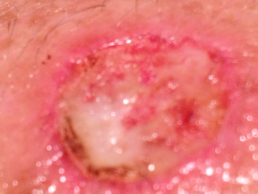 Wound repair after basil cell surgery