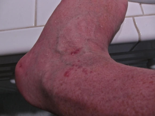 Big Bug Bites Swollen Ankle