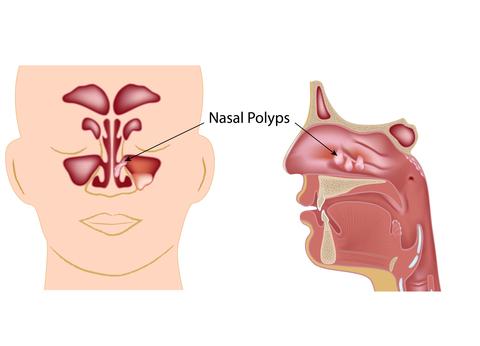 Nasal fungus