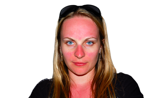 Natural Sunburn Treatments to Protect Your Skin