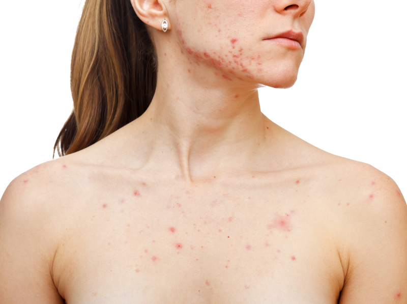 Fighting Acne Without Harsh Chemicals or Scary Pills