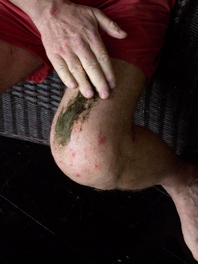 Sprinkle powder onto the effected skin