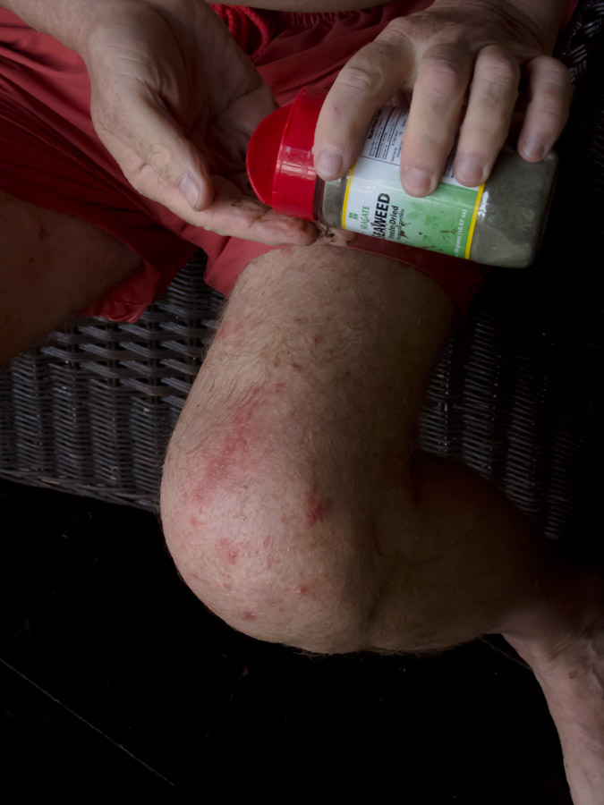 Seaweed Powder applied to Fire Coral Rash