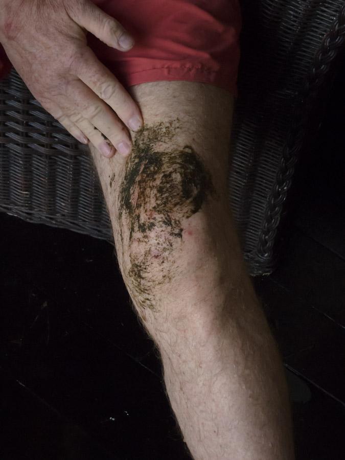 Wet Seaweed Powder carefully spread over rash