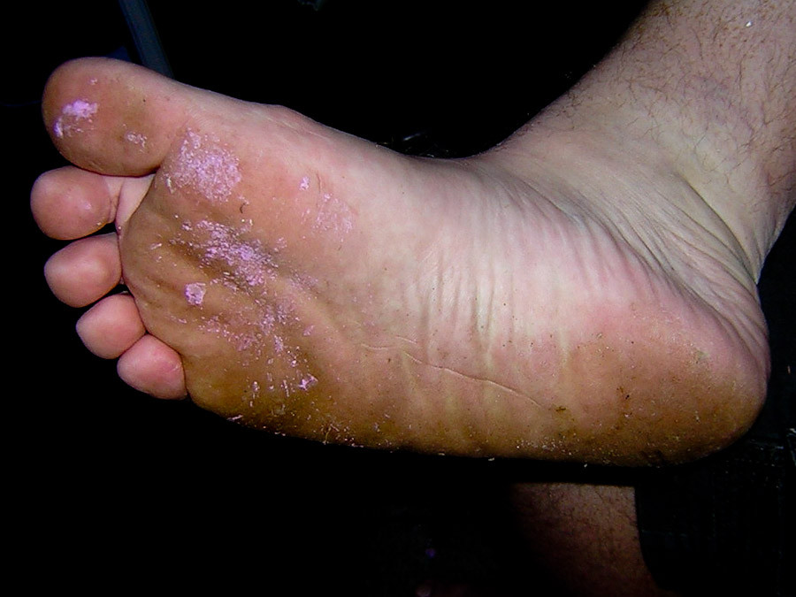Choices for treating Athlete's Foot