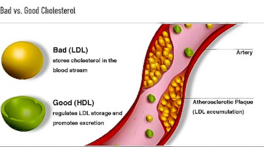 How can I quickly drop my LDL cholesterol?