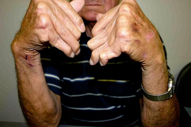 Arthritis Photo Credit: Handarmdoc via Flickr