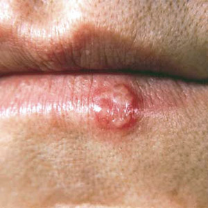 Best Natural Remedies for Cold Sores