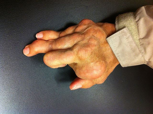 7 Natural Ways to Fight Gout Pain and Swelling