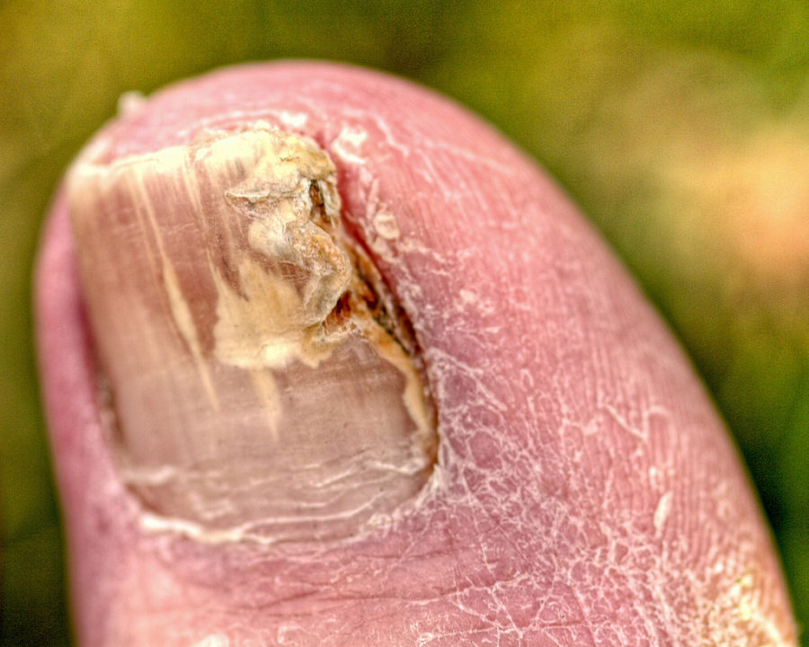 Toenail fungus customer question