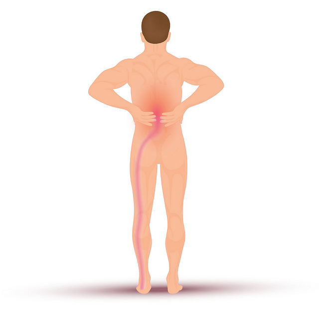 Understanding Sciatica and Natural Ways to Relieve the Pain