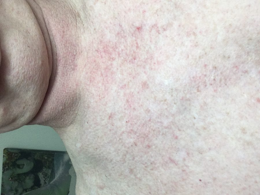 Seaweed Part VI – Grover's Skin Rash returns – By Richard Lentz