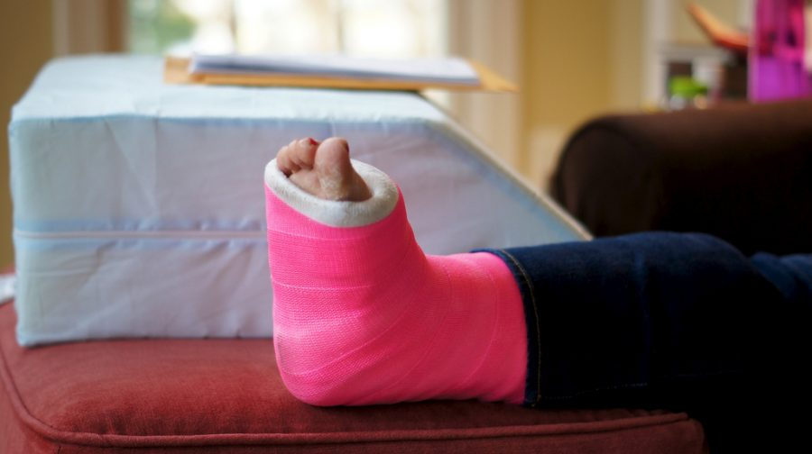 How to Help Yourself Naturally Heal After a Broken Bone