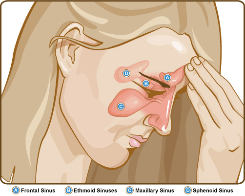 Distinguishing Sinusitis from Other Nasal Conditions and Natural Approaches