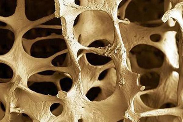 How to Lessen Osteoporosis and Naturally Boost Bone Health