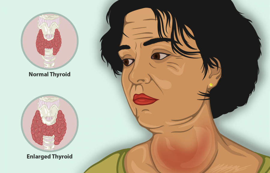What is Goiter and Natural Goiter Treatments to Consider